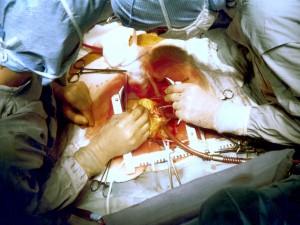 Только пересадка сразу восьми органов спасла китайца от тяжелых последствий гриппа
