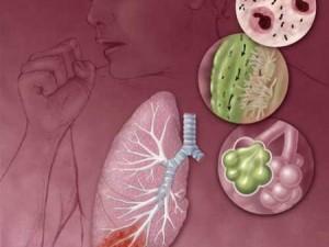 Пневмония и менингит распространяются с помощью гриппа