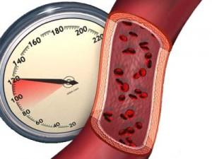 Оздоровительная физкультура при гипертонии