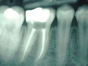 Как осуществляется лечение зубных каналов
