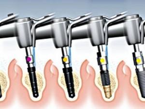 Имплантация зубов – решение проблем
