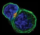 Восстановление иммунной системы: активация Т-киллеров без Т-хелперов возможна!