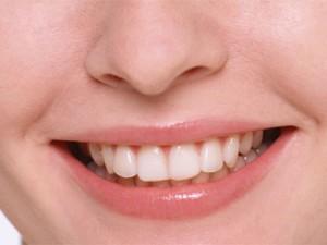 Зубной камень – не приговор