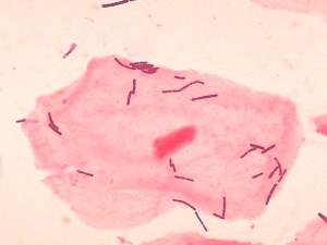 Как вылечить бактериальный вагиноз