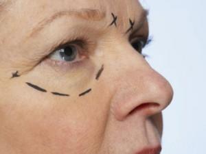 Хирургическая коррекция кожи вокруг глаз