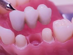 Что такое «мягкие зубы»?