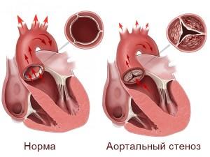 Сужение аортального устья