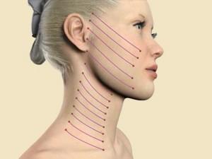 Виды нитей для подтяжки лица