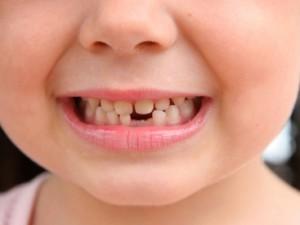 Молочные зубки: стоит ли лечить?