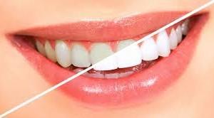Отбеливание зубов в домашних условиях: 4 самых эффективных рецептов