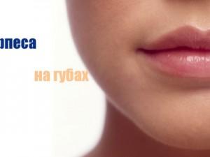 Герпес на губах — как его правильно лечить?