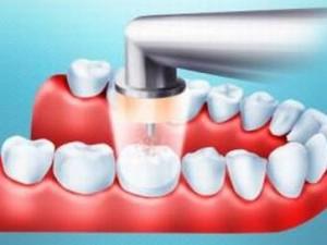 Лечение зубов лазером без бормашины