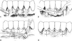 Удаление зубов: основные техники проведения операции