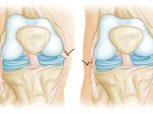 Растяжение связок коленного сустава: причины, диагностика и лечение