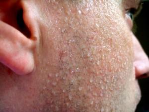 В человеческом поте обнаружен мощный природный антибиотик