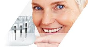 Процедура имплантации зубов: техника и особенности