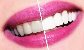 Отбеливание зубов в домашних условиях и у стоматолога