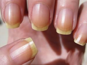 Проблемы с ногтями: источники