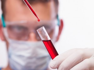 Ученые из Америки обнаружили неизвестный смертельно опасный вирус