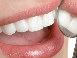 Синдром сломанного зуба: краткая характеристика