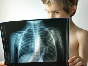 Пневмония у детей: симптомы, лечение, профилактика