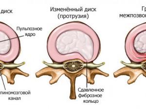 Методы лечения грыжи межпозвоночных дисков