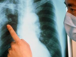 Обнаружены ДНК бактерий туберкулеза XVIII века