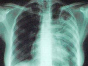 Женщина из Индии привезла в США редкий штамм туберкулеза