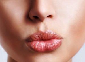 Как быстро избавиться от герпеса на губах: полезные советы