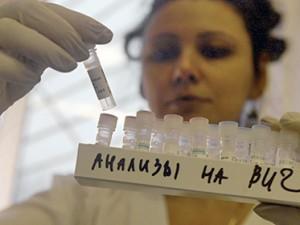 В Госдуме поддержали идею об обязательных тестах на ВИЧ перед свадьбой