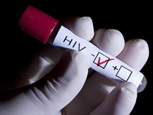 Ученые: иммунная система человека может быть производителем ВИЧ