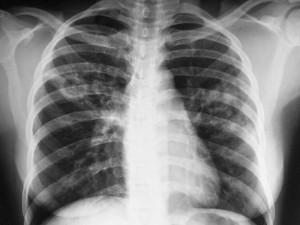 Ученые выяснили, когда и откуда взялся туберкулез