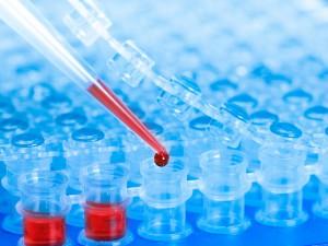 В Новосибирске придумали тест на ВИЧ, который заменит импортный