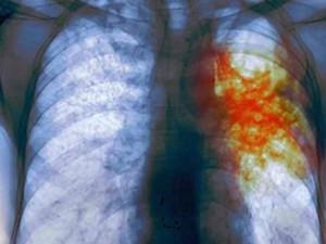Новая комбинация медикаментов позволяет быстро вылечить туберкулез
