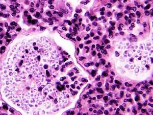 Ученые обнаружили новый возбудитель менингита