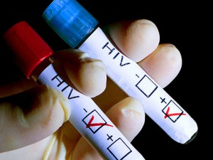 Обнаружен новый способ борьбы с ВИЧ-инфекцией
