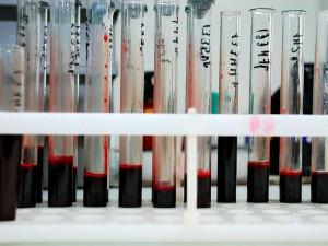 России угрожает эпидемия ВИЧ
