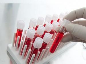 Новый анализ крови быстро покажет риск инфекции