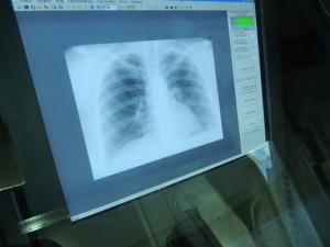 В Адыгее с начала месяца от пневмонии погибли шесть человек