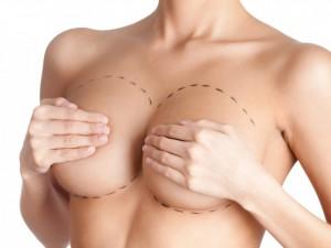 Маммопластика: что нужно знать о процедуре