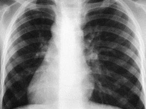 Ускоренный анализ на туберкулез станет доступным в 16 странах