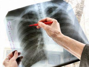 В Казахстане более 300 пациентов с туберкулезом уклоняются от лечения