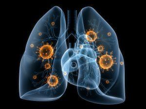 Определить пневмонию поможет тест на дыхание