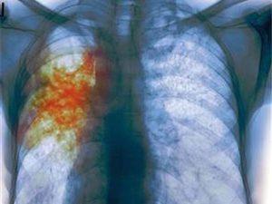 Новый тест поможет быстро выявить туберкулез