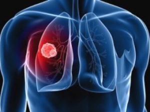 Профилактика туберкулёза в 2016 году