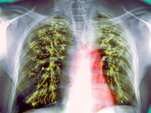 Новый дыхательный тест в считанные минуты может выявить туберкулез