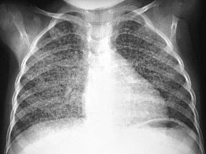 Появление туберкулеза назвали следствием освоения огня