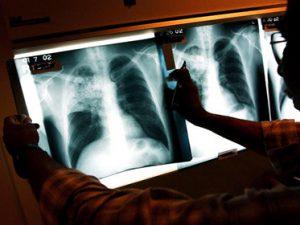 Российский туберкулез оказался самым смертоносным в мире