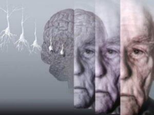 Болезнь Альцгеймера можно вылечить