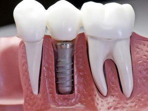 Виды имплантантов зубов, преимущества имплантации